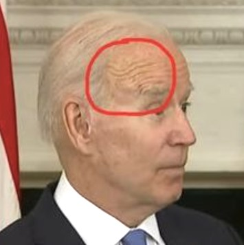 The Internet Has Spotted a 'Lump' on Biden's Head – IOTW Report